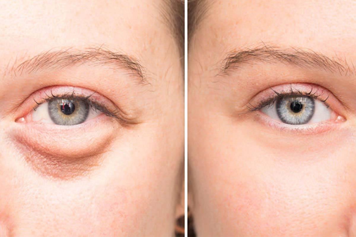 Как быстро убрать опухшие глаза после слез - все способы