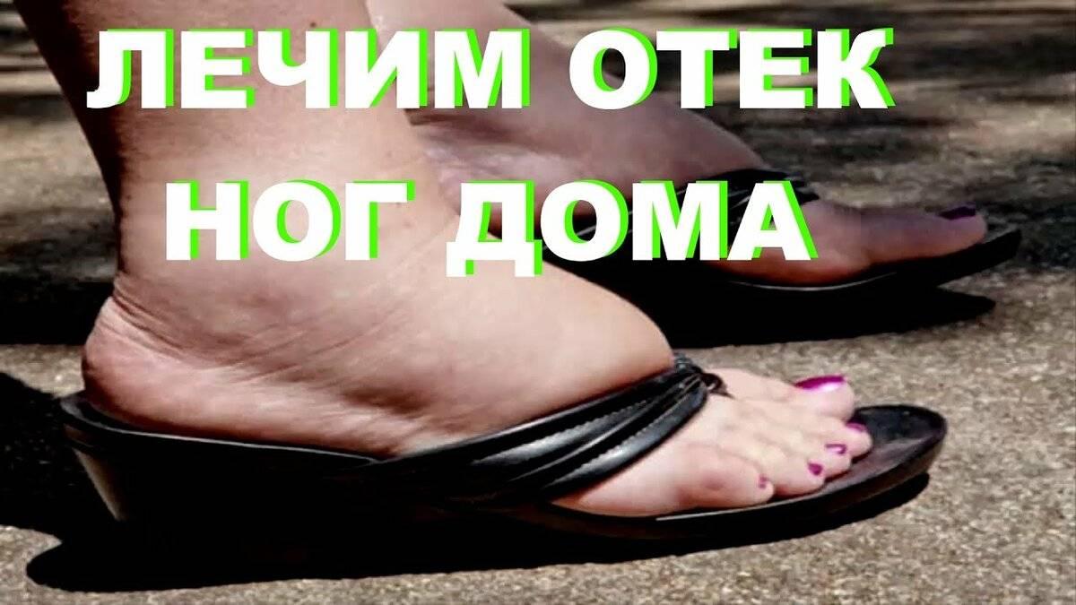 Как снять отечность ног быстро в домашних условиях