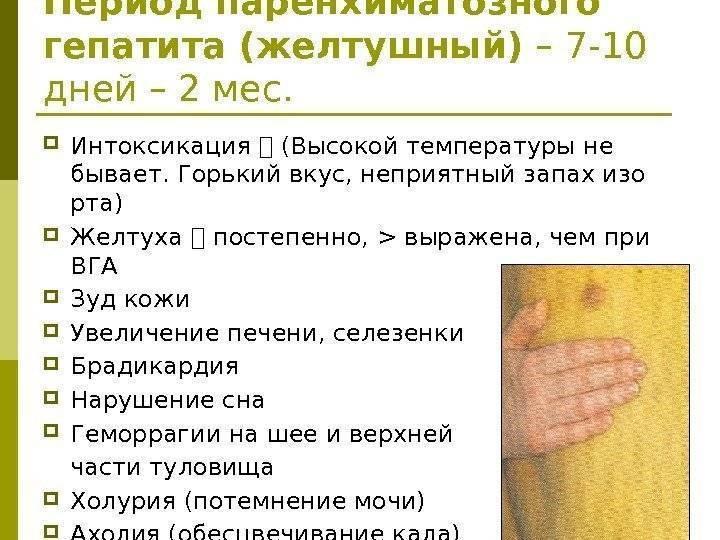 Температура тела при циррозе печени