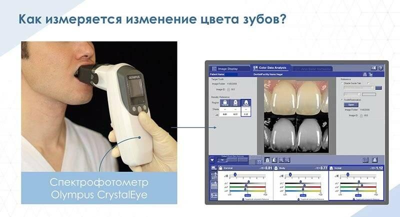 Можно ли курить iqos после отбеливания зубов – главные правила ?