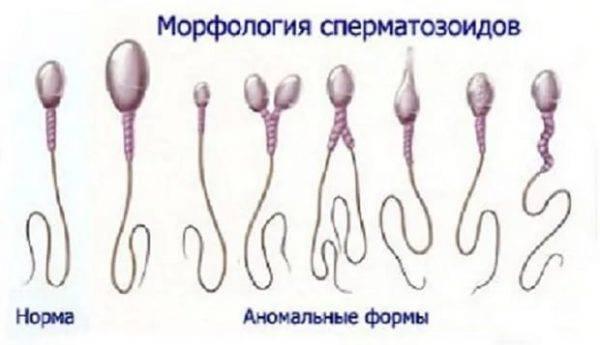 Из чего же сделаны мальчишки: влияние курения на сперматозоиды?