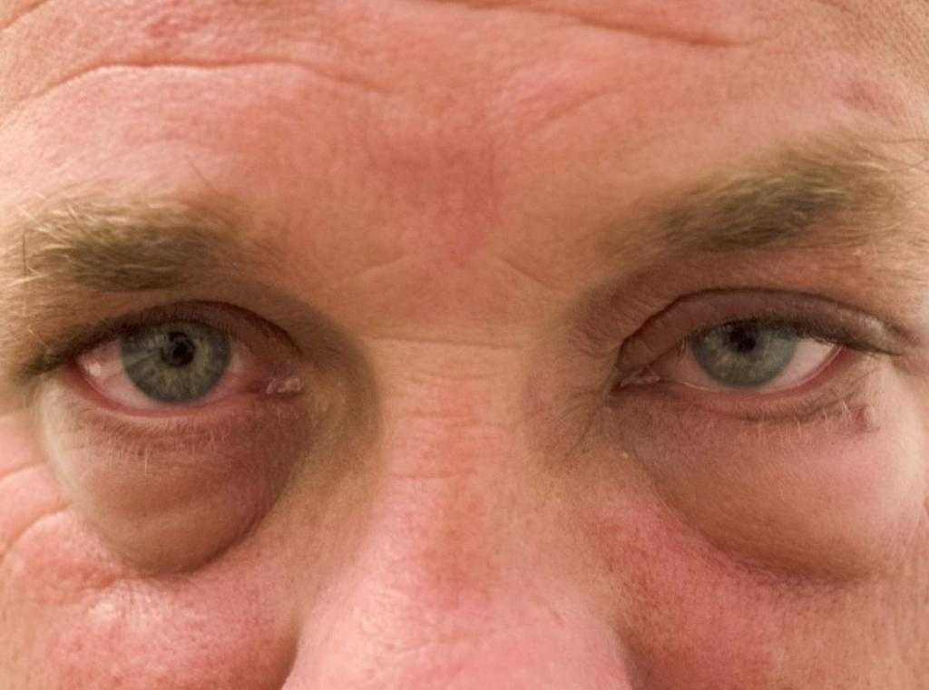 Если красные глаза и отеки после алкоголя