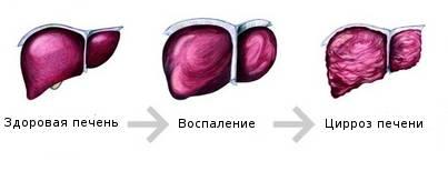 Цирроз печени с кровотечением что такое