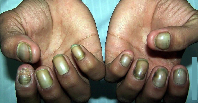 От чего желтеют пальцы на руках при курении