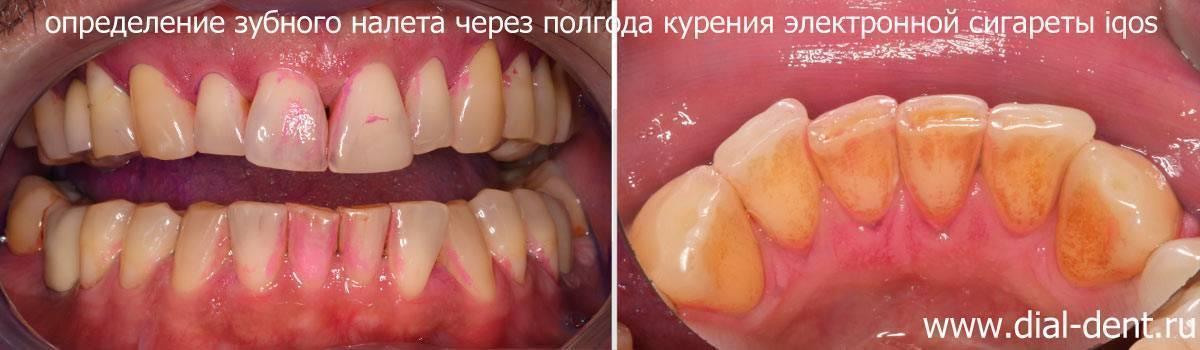 Белая диета после отбеливания зубов: что нельзя и что можно после чистки