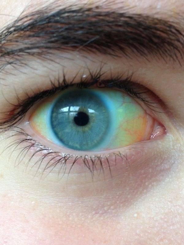 Как желтеют глаза при гепатите, циррозе, желтухе?
