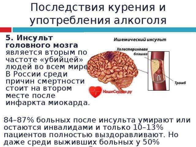 Инсульт и употребление алкоголя