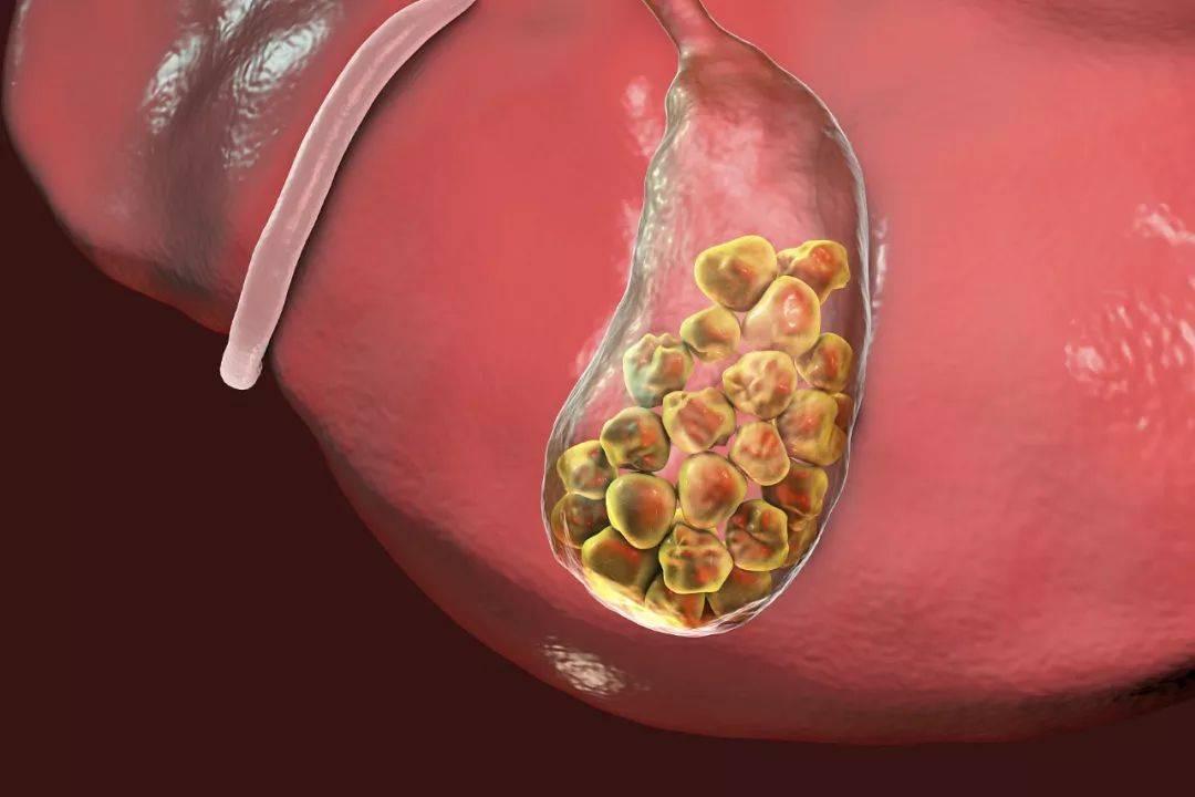 Алкоголь и холецистит - пищеварительная система