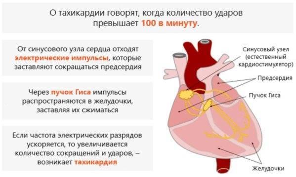 После алкоголя тахикардия и учащенное сердцебиение: что делать