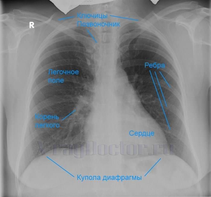 Рентген легких: какие заболевания видно на снимке
