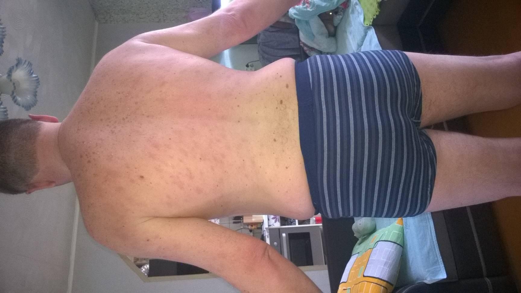 Красные пятна на теле после алкоголя