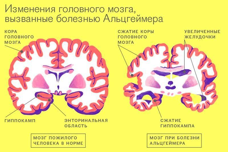 Деменция (старческое слабоумие)