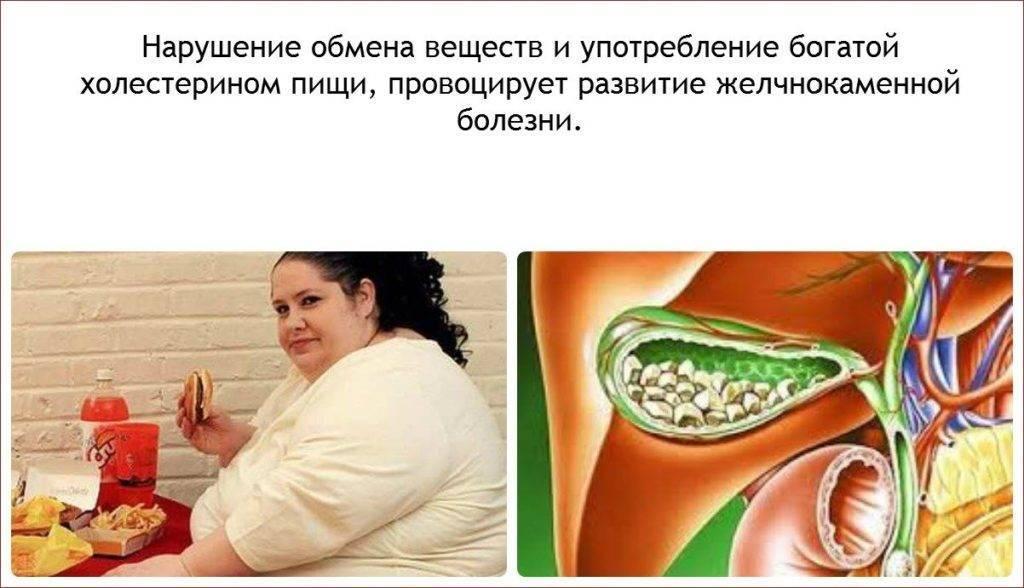 Диета при холецистите - питание при воспалении желчного пузыря, меню, рецепты блюд, продукты