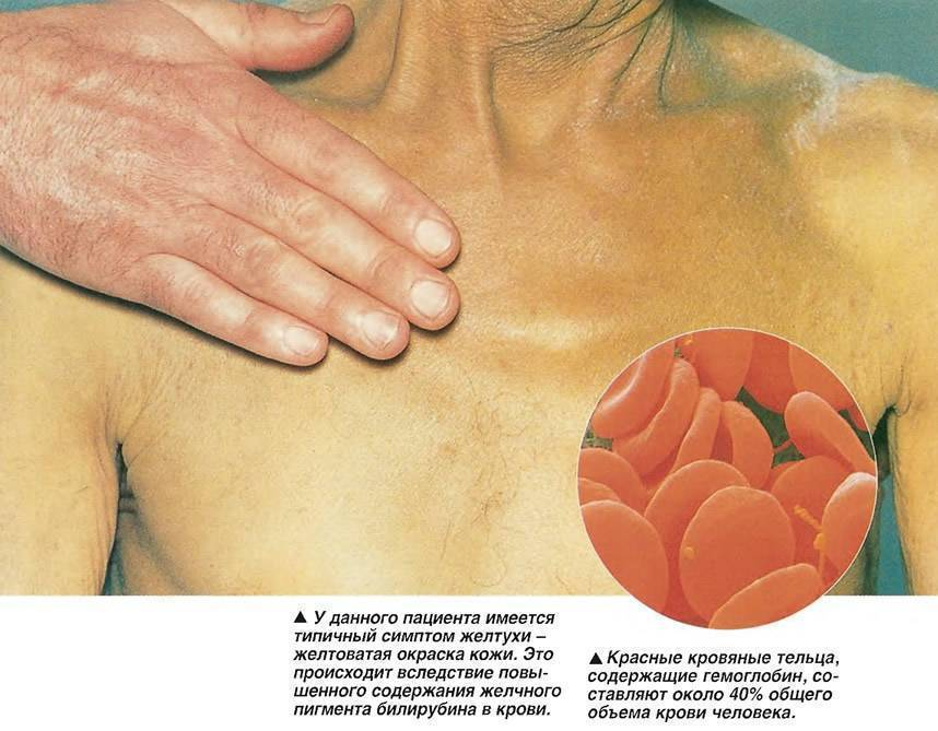 Какой бывает цирроз печени: фото, причины и признаки заболевания, диагностика цирроза печени