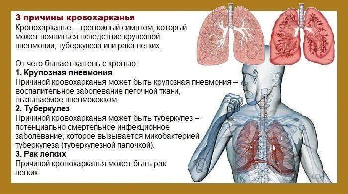 Почему горло болит? ларингит, тонзиллит, фарингит и еще 6 причин. как лечить боль в горле