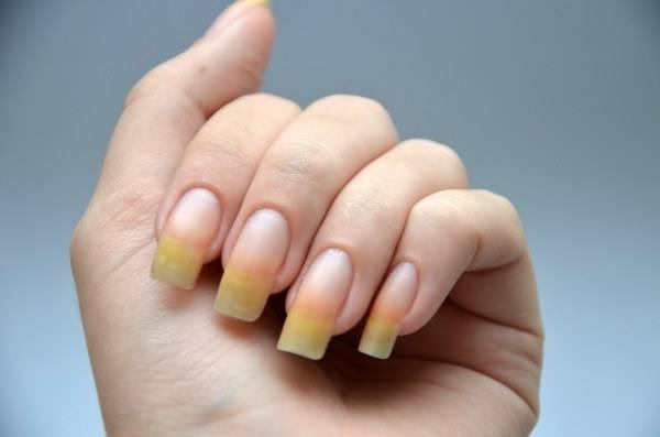 От чего желтеют пальцы на руках при курении - wikimediconline.ru