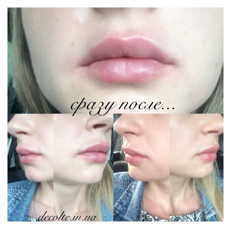 Уход за губами после увеличения гиалуроновой кислотой: что можно и нельзя - алкоголь, курить, целоваться, спорт, сауна, правила, ограничения и ощущения, как спать