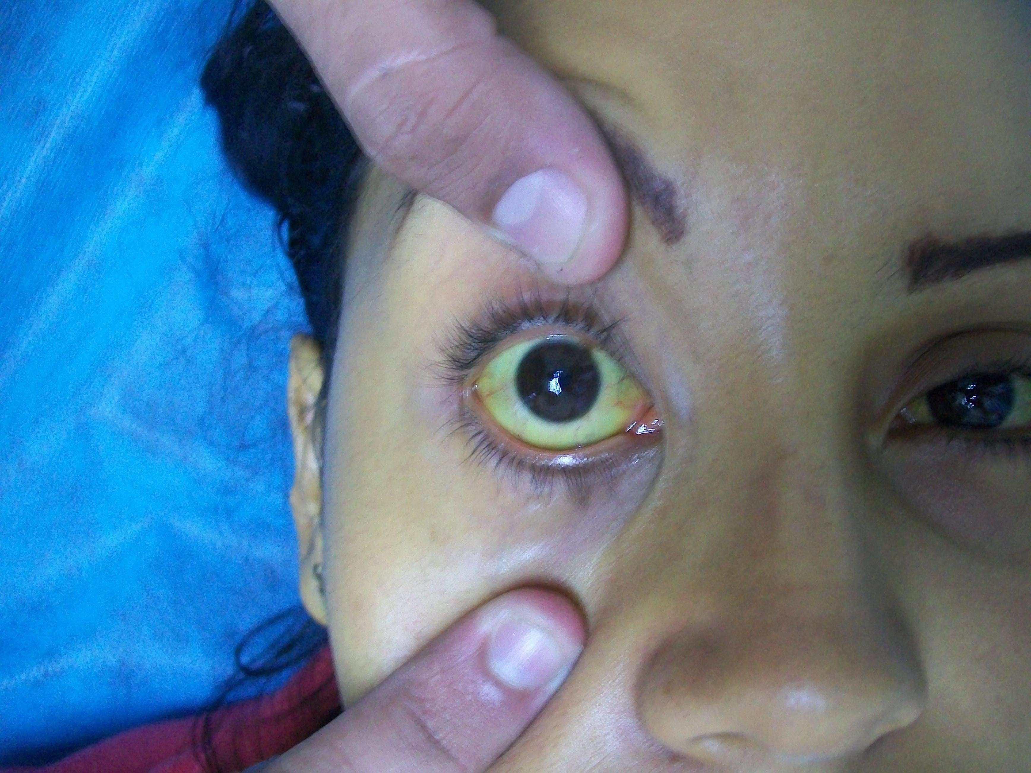 От чего желтеют глаза по бокам. почему глаза желтые? самые распространенные причины пожелтения склеры