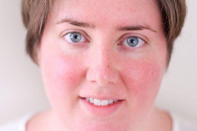 Пастозность лица: причины и лечение пастозности