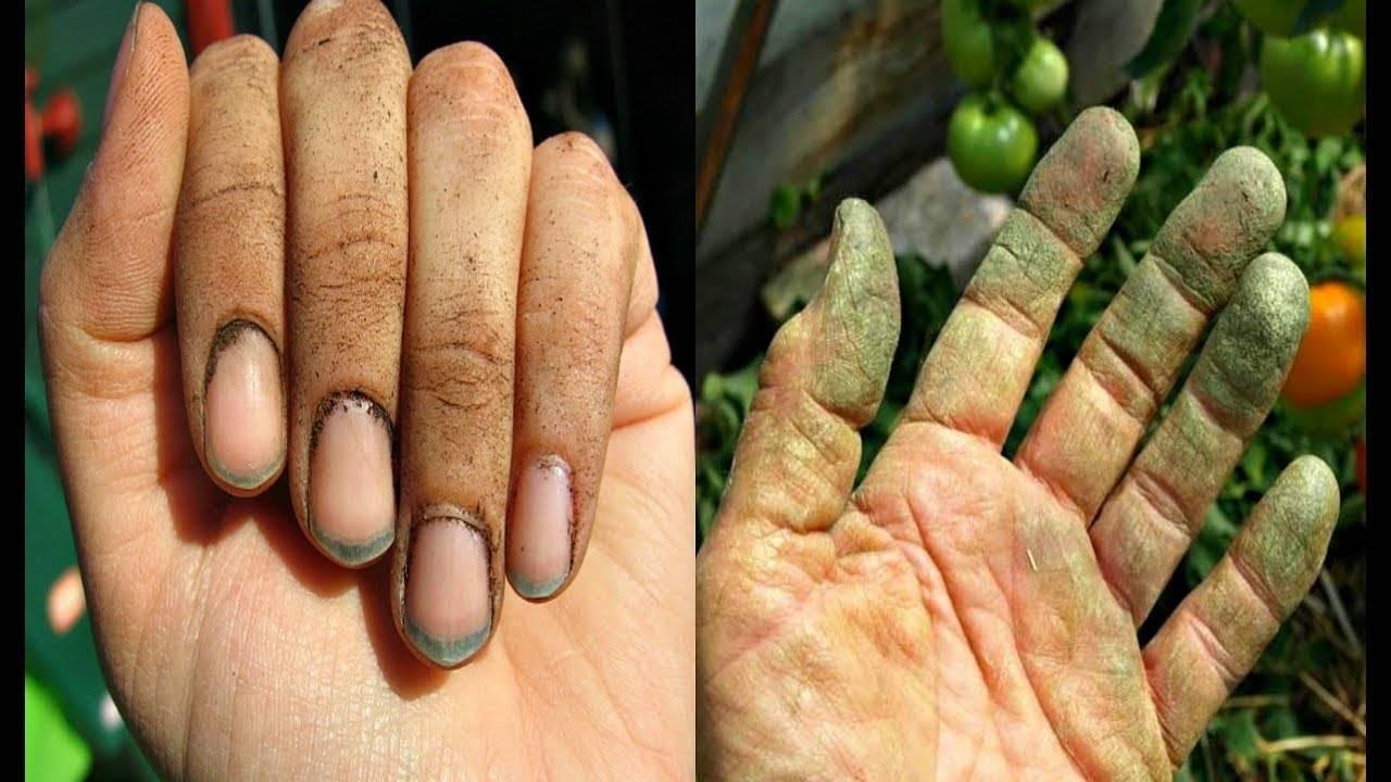 Желтые пальцы от сигарет как убрать