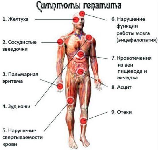 Синдром острой и хронической печеночно-клеточной недостаточности, его признаки, диета и лечение