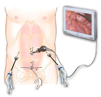 Как выходит газ из брюшной полости после лапароскопии