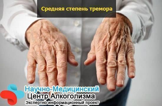 Почему немеют руки после алкоголя и что с этим делать