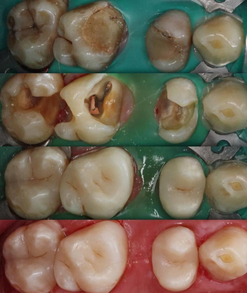Почему нельзя есть после пломбы 2 часа — зубы