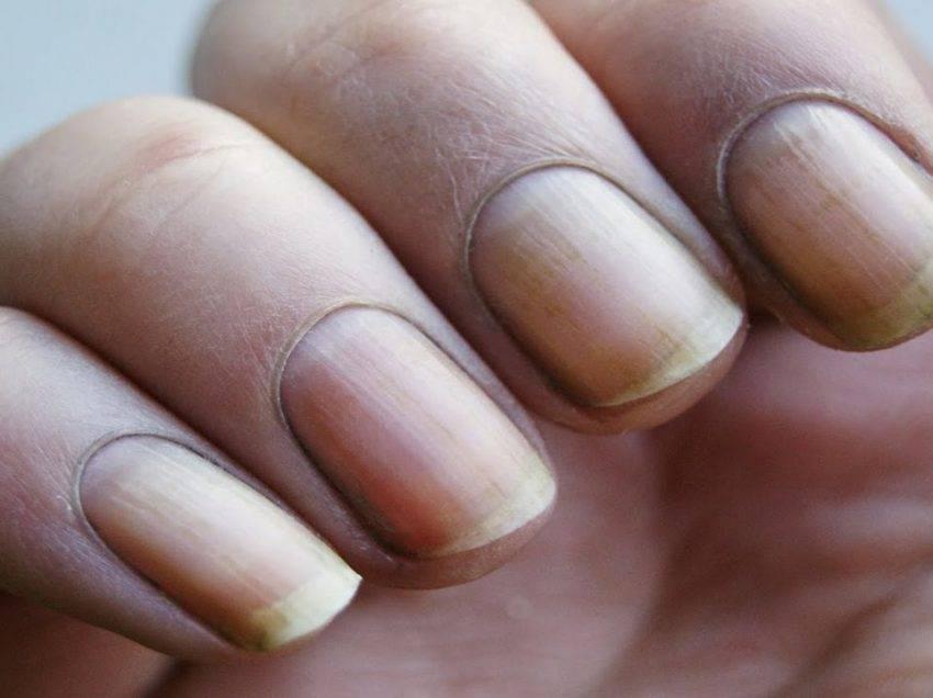 Пожелтел палец - о здоровье