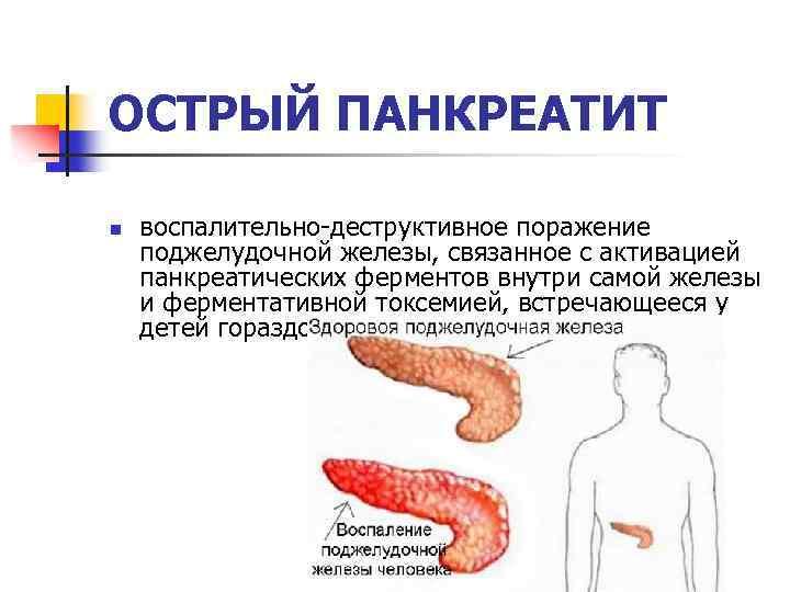 Можно ли курить после операции на поджелудочной железе