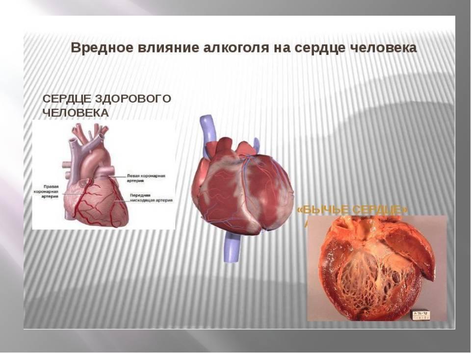 С похмелья сильно бьется сердце, что делать?
