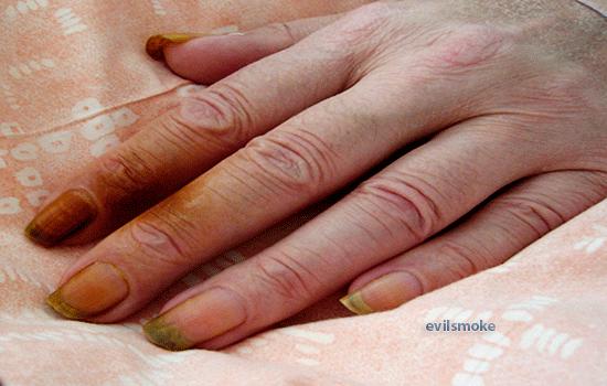 От чего желтеют пальцы на руках | wine & water