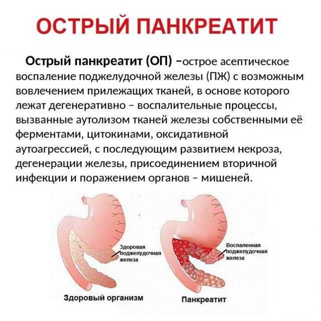 Как лечить панкреатит поджелудочной железы в домашних условиях