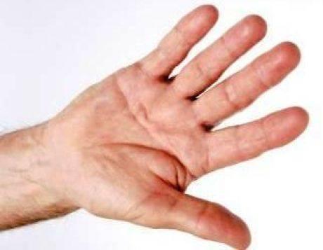 Как убрать тремор рук после запоя