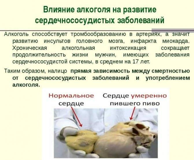 От чего чаще всего умирают алкоголики: инсульт, цирроз и язва | medeponim.ru