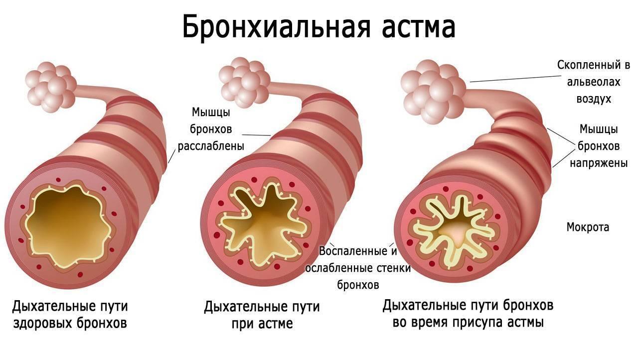 Можно пить спиртное при бронхиальной астме