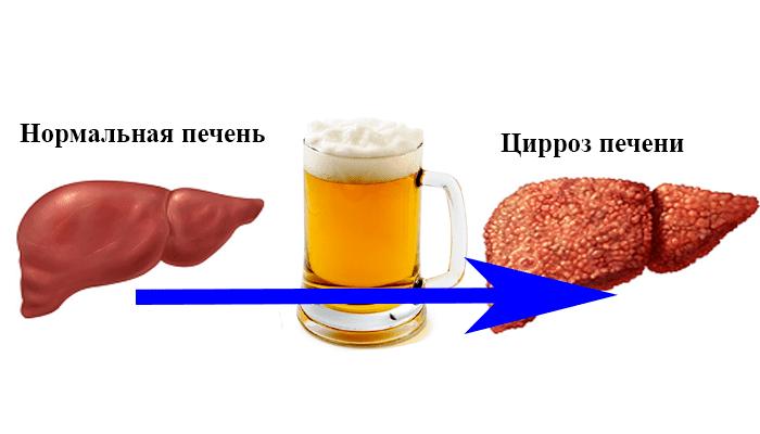 Болит правый бок на следующий день после принятия алкоголя, спиртного