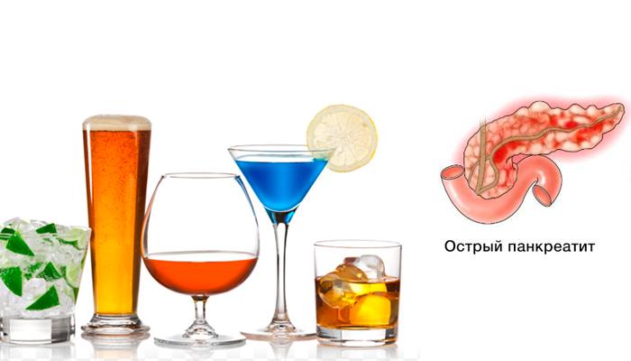 Как алкоголь влияет на состояние поджелудочной железы?