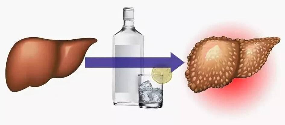 10 продуктов, которые защитят вашу печень от воздействия алкоголя