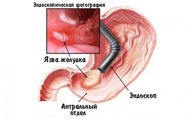 Можно ли курить перед гастроскопией желудка и почему нельзя курить перед фгдс