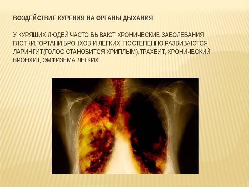 Мокрота курильщика коричневая, серая, с кровью: как избавиться и может ли быть после отказа от курения сигарет?