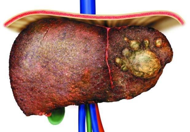 Можно ли вылечить жировой гепатоз печени полностью?
