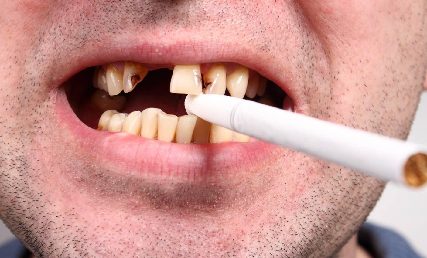 Отзыв курильщика об iqos: желтеют ли зубы?