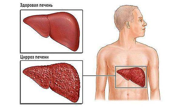 Повторное кровотечение при циррозе
