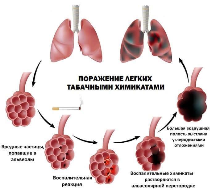Все возможные причины почему курильщики кашляют: с кровью или мокротой, по утрам?