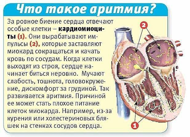 Можно ли пить сухое вино после инфаркта