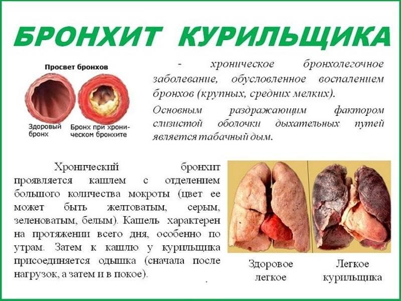 Кашель курильщика: причины образования, опасность для здоровья и терапия