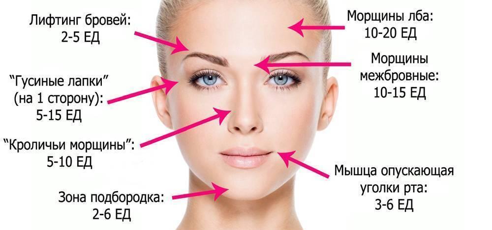 Сколько держатся филлеры в губах, носогубках, под глазами и на других участках лица. как долго рассасывается гиалуроновая кислота