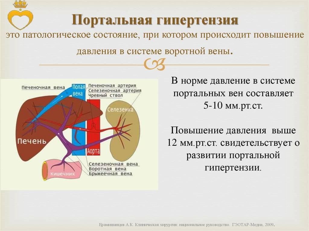 Портальная гипертензия на фоне цирроза печени