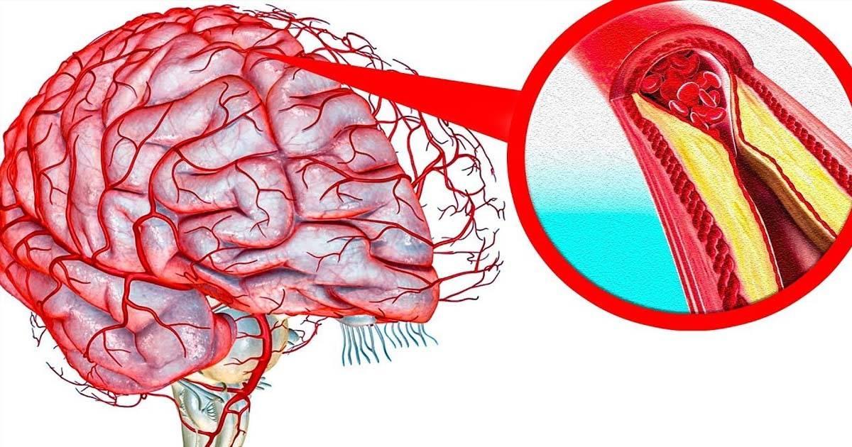 Лечение атеросклероза сосудов головного мозга народными средствами, эффективные методы